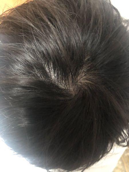 これ禿げてますか?