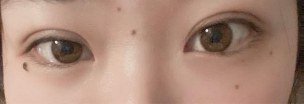 今日湘南で、埋没の、クイックコスメティックダブルをやってきました。 右目は自然になったと思うんですけど左目は幅広すぎて違和感を感じますか?