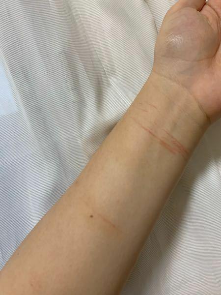 女子高生。リスカ痕について。 2日前に人生初のリスカをしてしまい、今は後悔しています。 現在の跡の様子は写真の通りです。浅い傷なのですが消えるでしょうか。 また隠す方法も教えていただきたいです。 今はバレたくなくて手首を痛めたといって湿布を貼って登校しています。家ではファンデとコンシーラーで親にも隠しています。