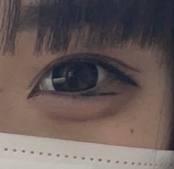整形についてです (写真は自分の目です) 高一でお金もあんまりないのですが 目頭切開 目尻切開 タレ目 の中で (これ以外でもオススメあれば教えて欲しいです) 何をしたら目でかくなりますか? 面長+目離れててつり目で小さいです。 鼻も低いし、人中も長いしWWW 骨消したいけど高すぎて目でかくいじるしかないなと思っていてー。 ・名前忘れたんですけど、目頭に皮みたいなのを 切るのは目頭切開で切ってくれるんですか? 二重と目頭はまだメイクで何とかできるけど 目尻がなんともできないので (お金溜まったら全部しようと考えてます) あと目尻とタレ目同時にした方がいいと聞きました