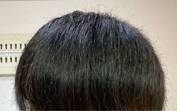 中3です。アホ毛の量が多いです。どうすればいいですか?周りはアホ毛全くないのですが…