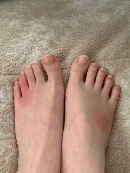 12月に足が赤くなっており、痒くて腫れていたので、水虫かとおもって病院に行ったらしもやけと診断されました。薬を塗って何日かで良くなったのですが、今日朝起きたらまた全く同じ場所が赤くはれており、痒...