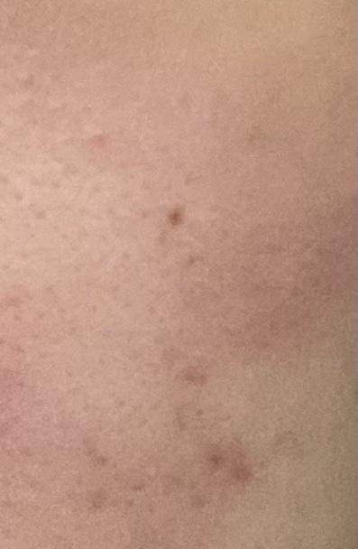 お風呂から上がると首から顔にかけて赤い発疹がでます。痒みがありますが痛みはありません。 何かわかる方いらっしゃいますか??