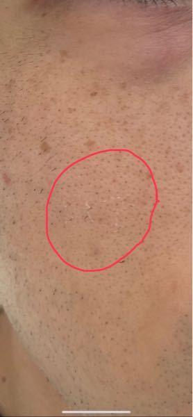 顔の皮が最近、薄く剥がれます。 これはどのようにケアすべきですか? また、何が原因でしょう? 2〜3年の間にシミもできて毛穴も開き、どんどん老化していく自分の顔に落ち込んでいます