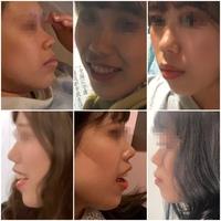 口ゴボで悩んでいます(画像)  もともと鼻が短く低いのもあって、口が前に出ているのがコンプレックスです 歯並びは良いのですが、歯列矯正は効果的なのでしょうか ほかの美容整形の方がいいですか?  鼻が短い、低い+口が前に出ている なのでどちらにせよ、鼻の高さ(長さ)を出す整形は必要になりますよね。  有識者の方なにかアドバイスおねがいします( ; ; )