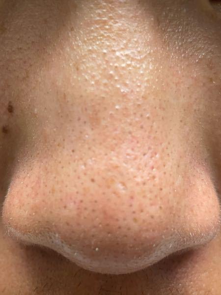 これはイチゴ鼻ですか?それともメラニン毛穴ですか?高校生です。