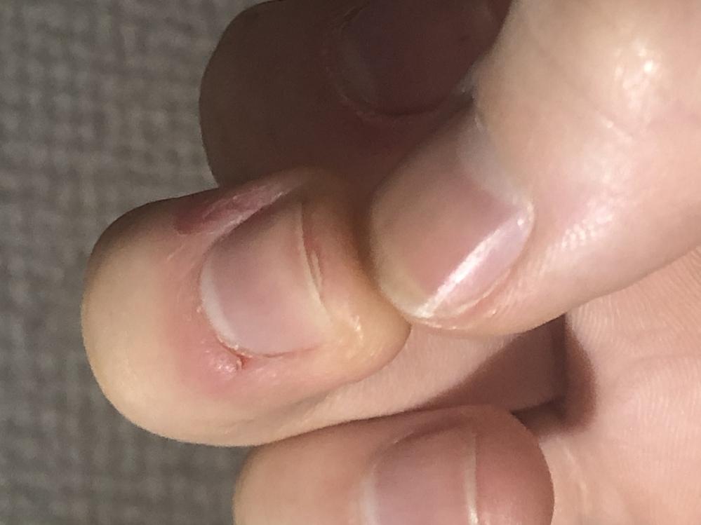 最近、中指の指先の皮が剥けてきてしまって気になるのでピッって抜いたら痛くなってしまって。そして、今日二枚爪になってしまいました。 いつも少し経ってから今くない程度に少しづつ引っ張っているのですが...