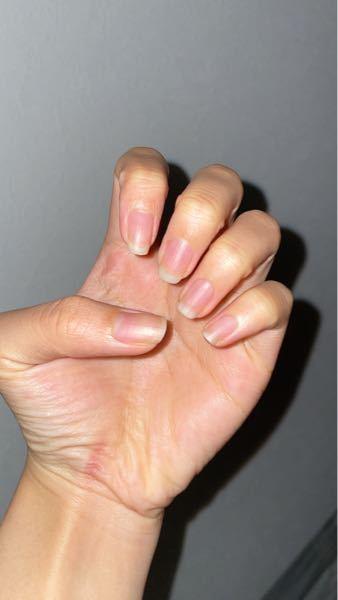 爪についての質問です。実は私、皮膚に対してピンク色の部分が少なく(爪が小さく)それがとてもコンプレックスです。ハイポニキウムを育てたくハンドクリームを塗るなどしているのですが、(まだオイルは買えていませ ん)それでも大きな変化は見られません。 インスタグラムでよく見かける自爪育成のビフォーアフター、私もしてみたいのですが学生なのでそのコースのお値段は払えません( ; ; ) ハイポニキウムは、ジェルネイルをするだけでも増えるのでしょうか?グダグダで申し訳ないです。とにかく、爪が大きくなる方法を教えていただきたいです。