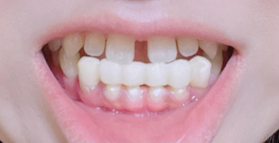 長年、すきっ歯、開口、反対咬合で前歯が噛み合わず事が出来ず悩んでいました。 左右奥歯の2本しかしっかり噛み合わせることもできず、舌が大きく矯正も難しいと大学病院で診断され、思い切ってオールセラミ...