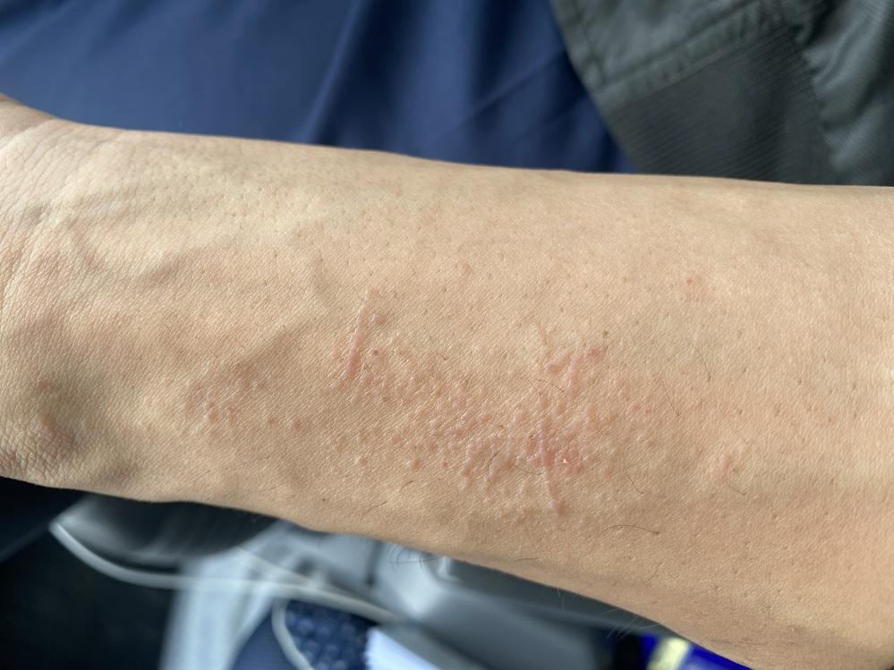 役2ヶ月前からで始めたんですが、この症状がわかる方いらっしゃるでしょうか? なかなか治らず、たまに痒いです。 猫を飼っていますがアレルギーでは無いので違うのかなと思っています。