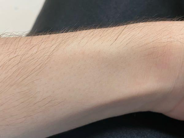 男子です。 試しで腕の一部に除毛クリームを塗りました。 写真のように毛穴がぽつぽつ見えるのですがこんなもんですか?除毛後を見えにくくする方法があれば教えて欲しいです。