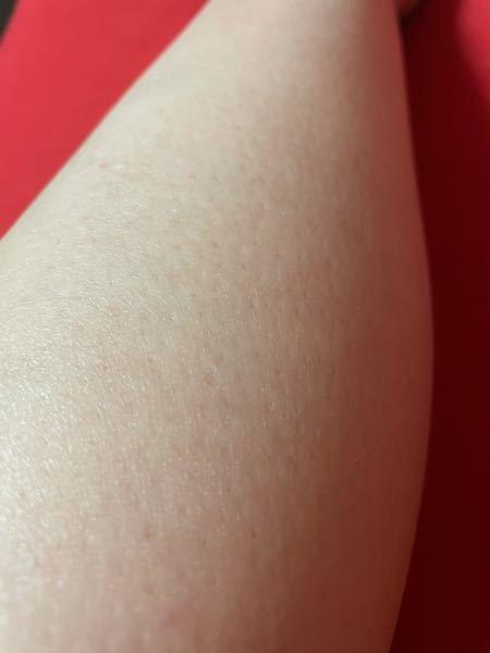 こんにちは。毛の剃った跡のことで気になっていることがあります。客観的にこの脚はどう思いますか?やっぱり汚いでしょうか…。