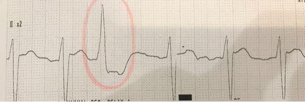 この波形ってAF+PVCですか?