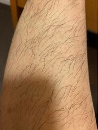 こんな脚ですが、女です。 多毛症でしょうか。 足のすね毛が人より異様に多く困っています。 昔から剃刀で剃っていたらいつのまにか毛が太く、長く伸びるようになり、遂には処理が難しくなってしまいました。 剃ってもすぐ生えてきますし、毛穴が目立ちます。 何年も長ズボンしか履けていません。 医療脱毛に行くと軽減されるでしょうか。 家庭用脱毛器でも毛を目立たなくすることは可能でしょうか。 とても悩んでい...