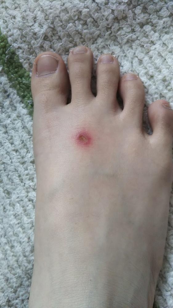 足に陥没ができました 中3女子です 1週間くらい前から足の甲に擦れたような痣があって放置してたら写真のように陥没(?)していました 触ると痛く周りも赤く腫れています なんの病気の可能性があるので...
