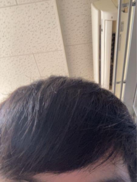 見えるか分かりませんが、髪の毛がつんつんたっています。 若干癖毛なのですが、それが影響なのか、ケア不足なのか、とっちでしょうか? また、ケア不足の場合、何を使えば良いでしょうか?
