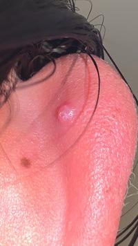 軟骨ピアスを開けてあとちょっとで2ヶ月です この前軟骨ピアスに髪が引っかかってしまい、 痛かったので触ってみると、膿みに血が混じったようなものが出ていました、 水で洗ってオロナインを塗って応急処置したら痛みは消えました。 何週間か経っているのですが、ポコっとなっています押すと痛いです。 これは肉芽ですよね…??