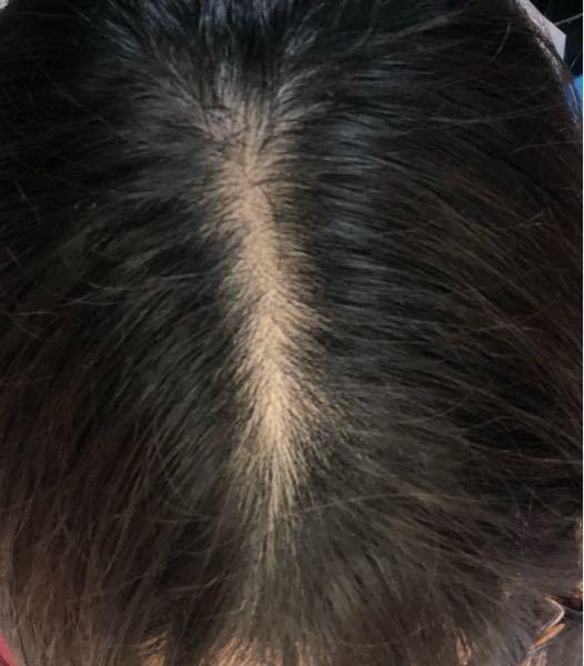 19歳女です。 これってはげてますよね?? 分け目のはげを治す方法や誤魔化す方法、対策を教えてください。お願いします!(涙)