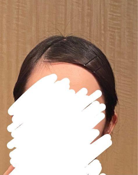 今から就活 履歴書に使用する証明写真を撮りにいくのですが、前髪止めるためにアメピン使って大丈夫でしょうか?