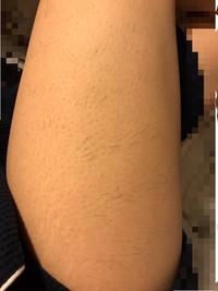医療脱毛の照射漏れについて  湘南美容外科の脱毛中で、太ももは3回目を終えて3週間が経ちました。 お目汚し失礼しますが、現在の右足(膝上)の写真です。  このように横縞状に密集して毛が生えており、写真の部位以外にも何箇所もあります。  これって照射漏れによるものなのでしょうか?毛周期の関係ですか?  よろしくお願いします。