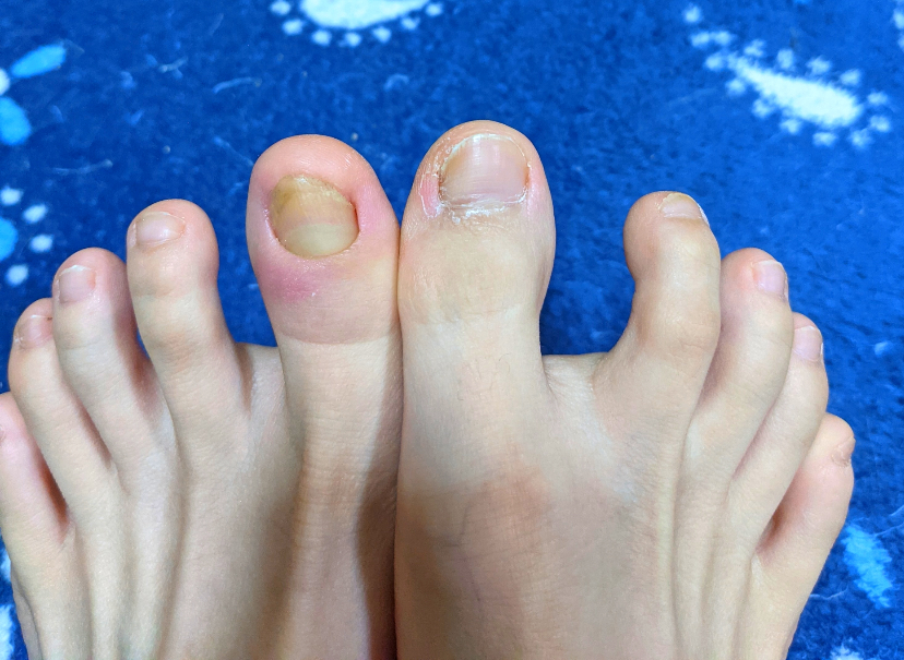足の親指が腫れてます。 3月に親指の爪が折れてからずっと爪が伸びず、皮膚が腫れるようになりま...