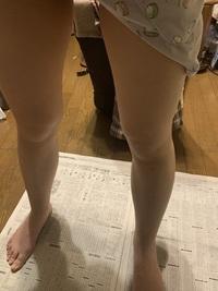 私は脚が太いです。 今までいろんな方法を試して来ましたが何をしても脚だけなかなか痩せません。特に膝上の肉とししゃも脚が気になっています。細くなって自信を持ってスカートやショートパンツを履きたいです。足を細くするためになにか良い方法はないでしょうか。