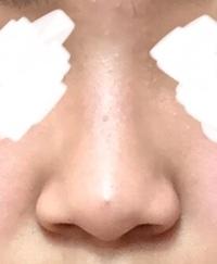 これって何鼻ですか? 分かる人がいたら教えて欲しいです。