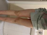 写真見て分かる通り膝上からいきなり太くて、 足パカを現在2週間ほど続けたりしてますが、 他に細くする方法ありますか?