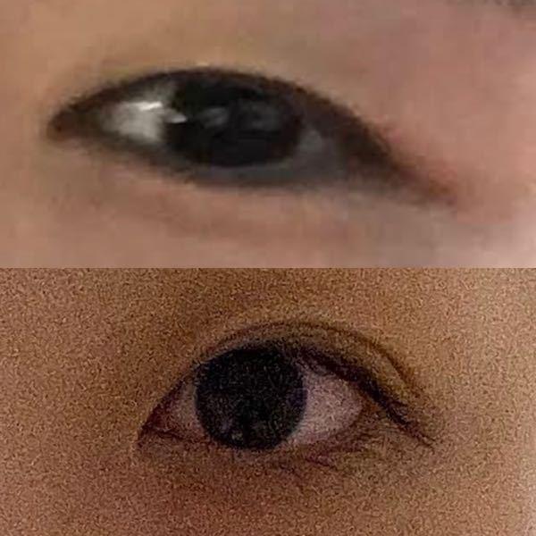 瞼について 伸びているのか、脂肪なのかわかりません。 もともと極薄の奥二重+脂肪がありました。でもその後マッサージをしたり癖付けしたりして、下の写真の目になりました。 これは伸びていますか? また