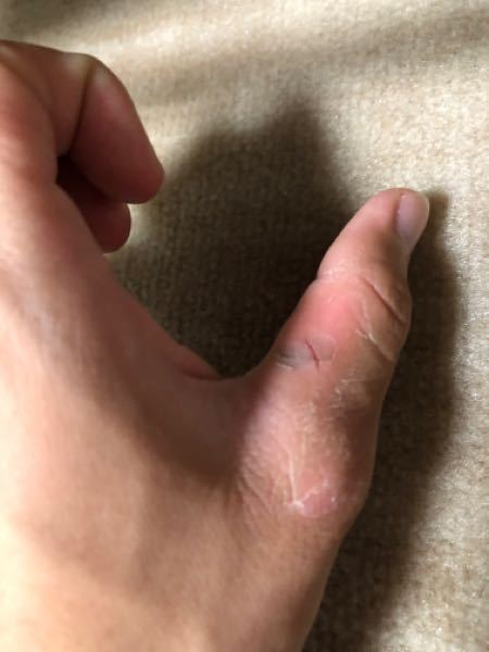 弓道 親指の側面(弓と触れる側)が擦れて皮膚がめくれたりぱっくり割れたりします。おそらく最近握り革を変えたことが原因だと思うのですがなにか対策はありますか?