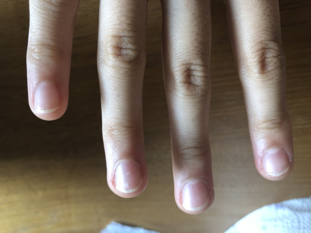 今年18の高校生です。 私は小さい時からの爪とその周りの皮膚を噛んでしまう癖が未だに治りません。 治らなかった挙句爪は縦線や白班が浮きでて、爪の周りの皮膚は丸く膨らみ、まるで小学生のような手になってしまいました。 幾度か直そうとジェルネイルやアクリルネイル、マニキュアも挑戦したのですが、なかなか上手くいかずそのまま今に至ります… そんな歩まない事を続けていたら付き合ってる彼氏から、今までの(噛まないことを)頑張ってない意思(努力)のせいだから不格好な指と爪になったのは自己責任じゃないの。と言われとても悲しくなりました。 そんなこともう二度と言われたくないので、この指とこの爪をどうにかして治したいです… 改善策、過去に同じ経験をして治った方、是非とも教えてください