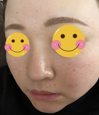 化粧の仕方について 29の混合肌体質の女です。 マスク生活で化粧が崩れやすいとは思いますが詳しい方にアドバイスを頂きたく投稿させていただきます。  混合肌用の化粧水と乳液ミノンの緑を使用していますが最近ベタつきが気になり、髪の毛がまとわりつくのでハトムギ化粧水に変えました。  乳液はポール&ジョーのピンク リキッドファンデにエスティーローダーのダブルウェアの3Dパフを水に...