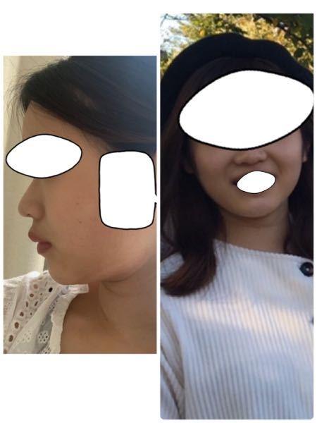これって中顔面が陥没しているから、ほうれい線がくっきり出てしまうのでしょうか?鼻翼基部陥没してますよね?自分で判断できないので判断願います。 体重が標準体重で、頬肉が肉厚なのも原因なのでしょうか。