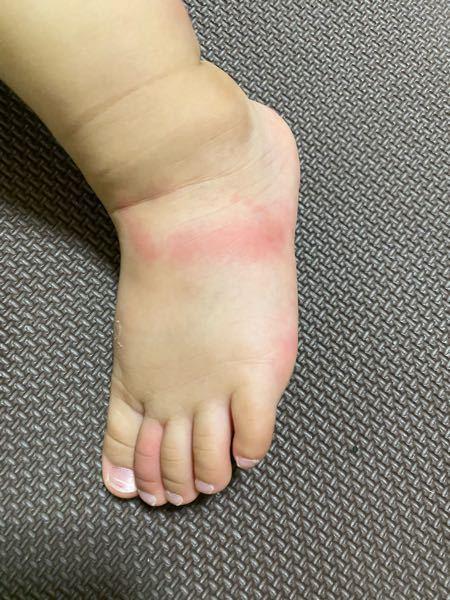 何に刺されたかわかりますか、、? 1歳の娘です。 今日の朝からいつもより体温が高く保育園には行けたのですが帰ってきて19時に測ると37.7℃で 保育園の先生からも言われましたが虫か何かに刺されてすごく赤くなってて、鼻水や咳もないのでその刺されたのが原因だと思うのですが、、、 2日前に保育園で公園行ったみたいです。 その日は虫刺されなど特に何も言われませんでした。 しかし、最近は保育園以外虫がいるような所にも行っておらずどこで、、(´TωT`)?という感じです。。