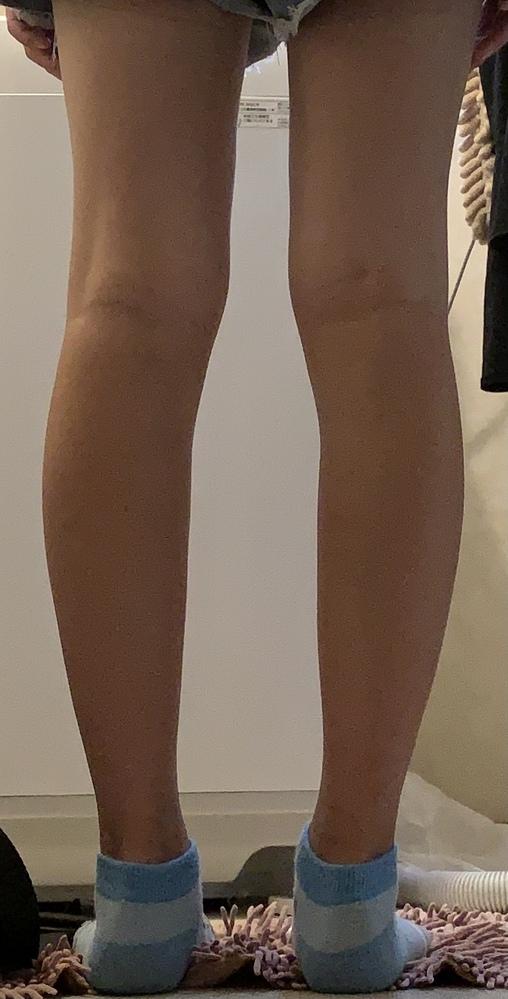 この足は筋肉太りか脂肪太りかどちらでしょうか?