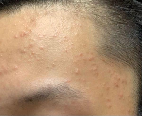 顔のこのブツブツは何だと思いますか?1〜2週間前に顔剃りをして、保湿をしないでいたらこうなりました。