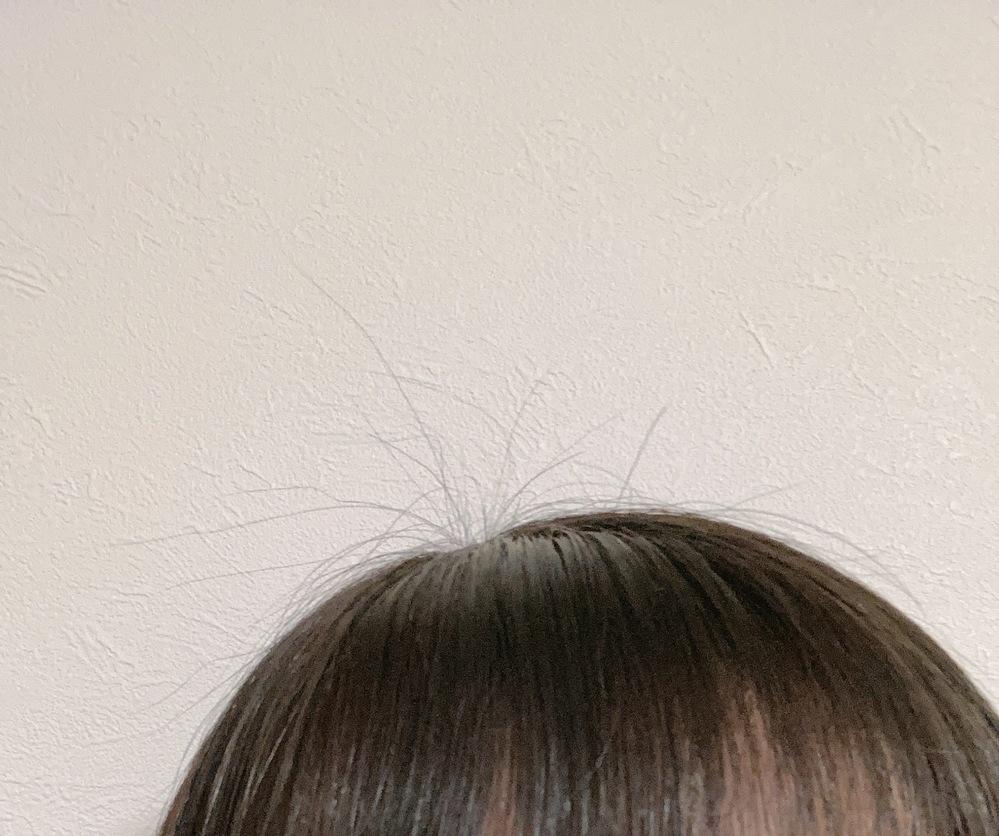 浮き毛、アホ毛についてです。 高校生1年生の女子です。 髪の毛の浮き毛がひどいです…! 画像のように頭頂部はぽわぽわでてきます。 また、前髪の間からもでてきたり 横の毛もぽわぽわでてきています……。 (ヘアアイロンをしてもだめでした) 学校に行く際は、ひとつに結んで マトメージュとケープを使って固めてますが、 梅雨の時期ということもあり、 出てきてしまうことが多々あります。 (自転車通ということもあって) 何かいい方法はないでしょうか? やはり縮毛矯正をかけるべきでしょうか?