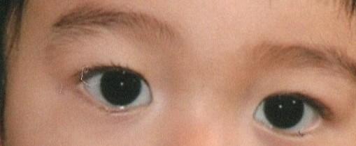 生後2時間でクッキリ二重瞼はダウン症ですか?と質問した者です。https://detail.chiebukuro.yahoo.co.jp/qa/question_detail/q14215798999 閲覧数が多くて結果を知りたい方が多いと思うので再投稿します。 結論からいうとダウン症ではありませんでした。 産まれた時はくっきりきれいな二重でしたが、添付写真のように1歳頃には奥二重になってしまいました...