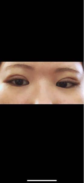 埋没1週間です。 ハム目って化粧したらマシにみえますか?マスカラは落とす時が怖いのでしないです。 19日に化粧するのですがこのハム目は治らなさそうなので。。