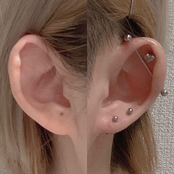 ピアスの位置について聞きたいです。 写真は私の耳なのですが、右耳のみ5個開いていて、最近左耳にも開けたいな、と思い始めてきました。 そこでアドバイスを頂きたいのですが、まだ開けていない左耳のロブに1つ開けたいと思ってます。 写真を見ればわかるように、左耳のロブ部分にホクロがあります… それが嫌で今まで開けてこなかったのですが、どこに開ければピアスとホクロのバランスを取れると思いますか…? また、右耳の真ん中らへん(軟骨)にも1つ開けたいと思ってるのですが、どの場所だと綺麗にバランス良くなるでしょうか? お願いします。