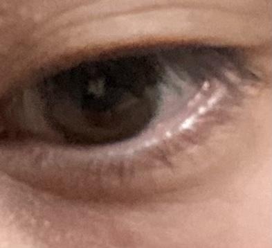 この目の画像で涙袋って言われる部分ってどこですか?
