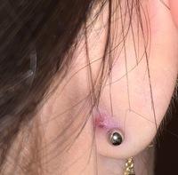 耳の裏のピアスの隣にある紫色のプチっとしたものってなんですか?? 病院に行った方がいいでしょうか、、? 出来ればピアスは外したくないのですが、開けて3ヶ月くらい経つのに未だにかゆくなったり膿んだりするので開け直すか悩んでます。