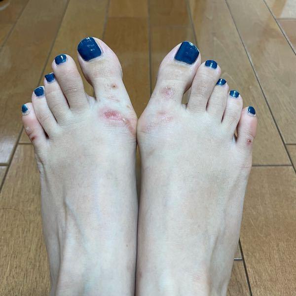 26歳女です。 小学生の頃からおそらく遺伝で外反母趾です。 どの程度の外反母趾でしょうか? 家に分度器がなくて測れなくて… (写真を添付してます) 写真のように、パンプスやサンダルを履くと親指...