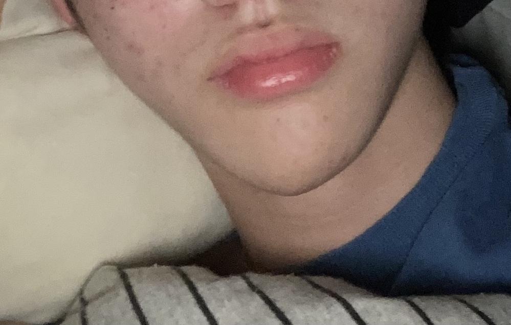 顎のズレが気になります!何か改善方法はあるでしょうか?