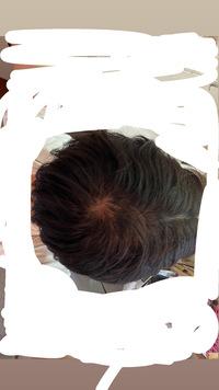 センターパートをしたときのつむじなんですけどこれってはげてますか?(くせ毛で乾燥毛) 高校生です