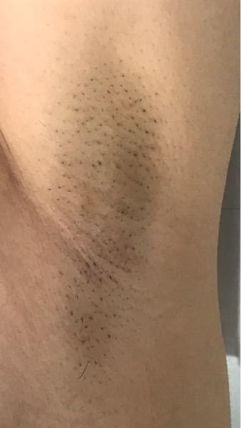 本当に閲覧注意!!!!!!!!! 17歳女の脇です。 抜いたり剃ったりしてどんどん毛が濃くなっています。 こんなに汚くても 永久脱毛すれば綺麗になりますか?
