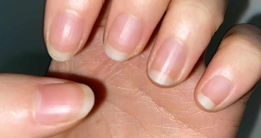 ネイルサロン 爪噛み癖 注)写真あり 小さい頃から数年前まで、ずっと爪を噛む癖がありました。もう爪を噛む癖は1年前くらい?に治ったのですがまだまだピンクのところが短いです。 来月人生で初めてのネイルサロンに行きたいのですがこの爪は噛み癖があったって分かりますよね……? 以前と違ってもう爪を隠したりすることはなくなりましたが、じっくり爪を見てもらうので、噛み癖があったって知られると恥ずかしいです…