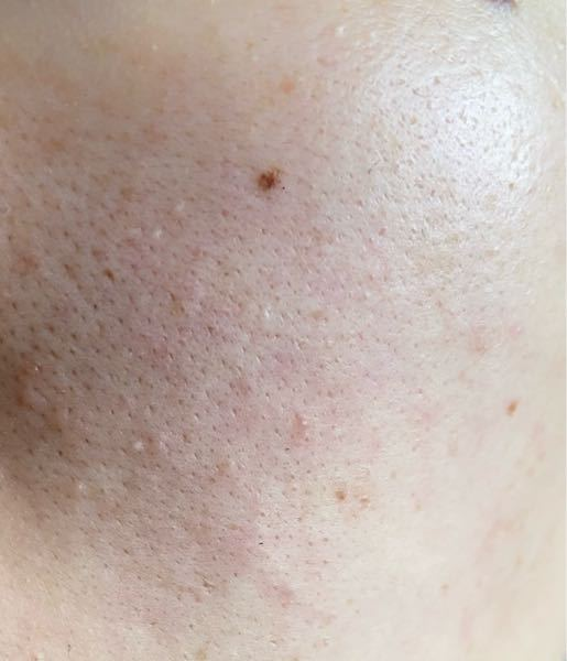 【汚肌閲覧注意】 20歳女です。 頬の毛穴がだるだるバチコボ黒ゴマ汚物です。 おすすめのケア方法はありますか? 油性肌です。