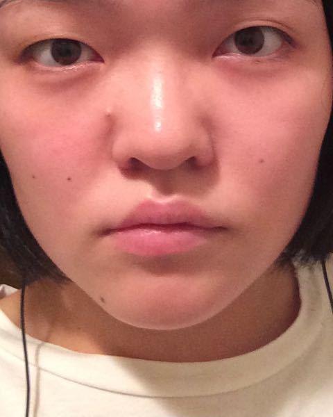 この顔は美人にするにはいくらくらいかかると思いますか?