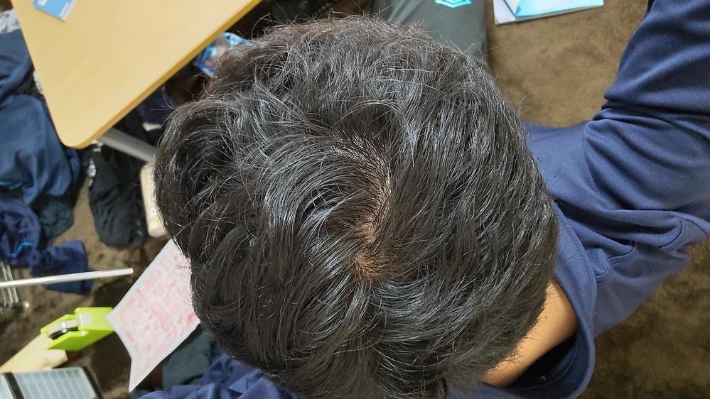 これって薄毛でしょうか? もうすぐ32歳になります つむじ割れみたいになります